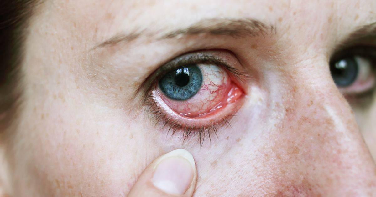 """Глаза режет от компьютера: симптомы, причины и методы лечения - """"здоровое око"""""""