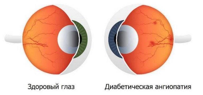Ангиопатия сетчатки: что это такое, обоих глаз, сосудов, у взрослых, атеросклероз, лечение, симптомы, причины