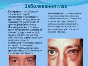Список заболеваний глаз, их симптомы и лечение