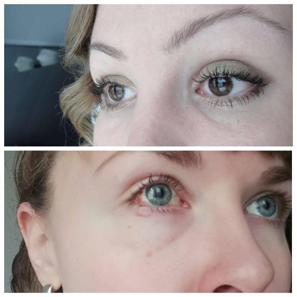 Операция детям на косоглазие удачно проходит, как малыши ее переносят, исправление косых глаз у взрослых, отзывы после лечения