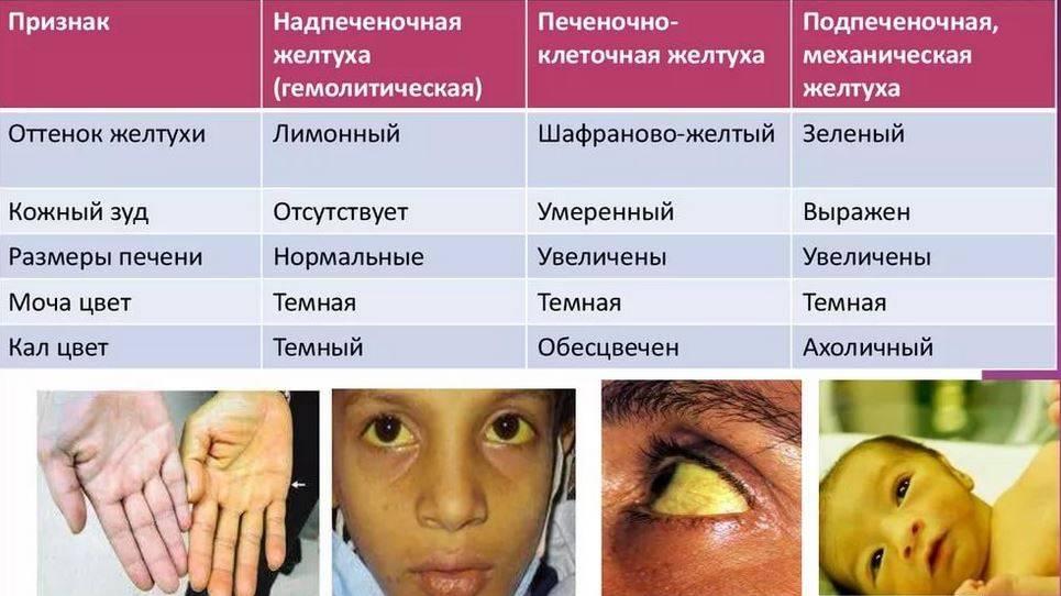 Блефарофимоз у детей