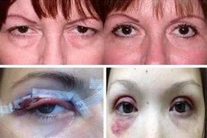 Советы по реабилитации после блефаропластики верхних и нижних век. препараты и процедуры для заживления