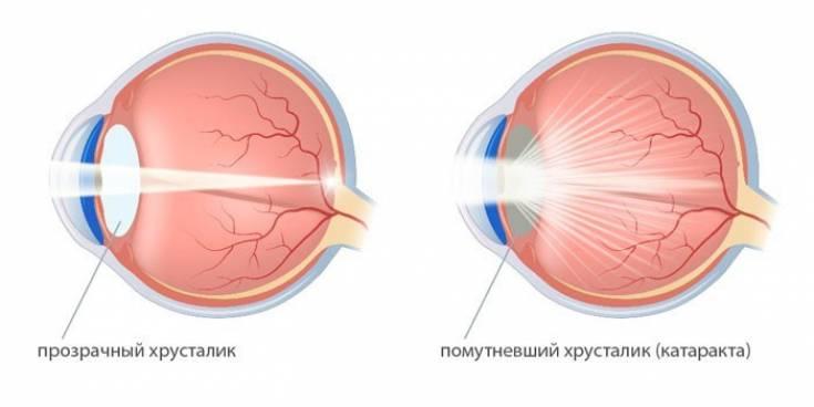 Искривление хрусталика глаза. что такое кератоконус глаз: причины, симптомы и возможные методы лечения. виды патологий, симптоматика и лечение - человек и здоровье
