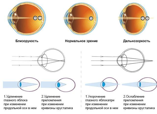 Лазерная коррекция миопии: показания и технологии проведения процедуры