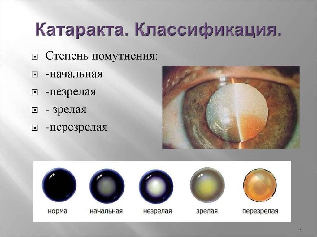 Врожденная катаракта — причины, симптомы, лечение врожденной катаракты