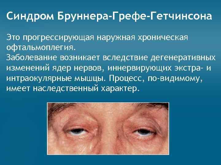Наружная, внутренняя, межъядерная офтальмоплегия: что это, виды, причины, диагностика, лечение синдрома