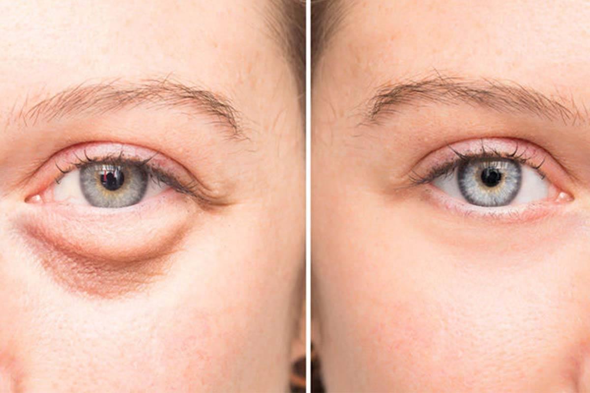 Как быстро и чем снять отек с глаз — препараты и народные способы