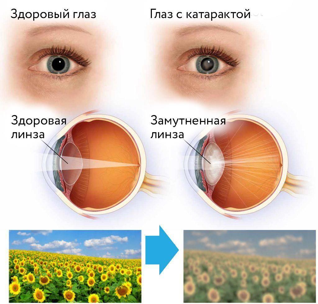 Мутная голова, смазанное зрение - вопрос невропатологу - 03 онлайн