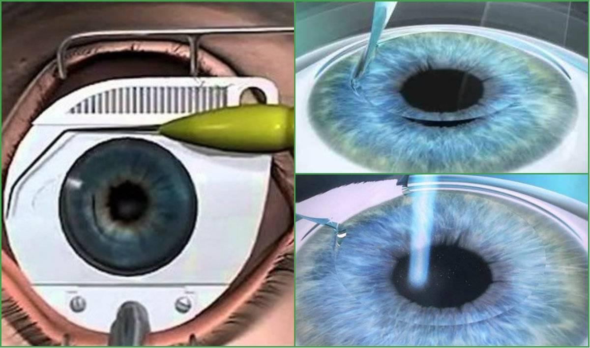 Подготовка к лазерной коррекции зрения: необходимые анализы, общие рекомендации