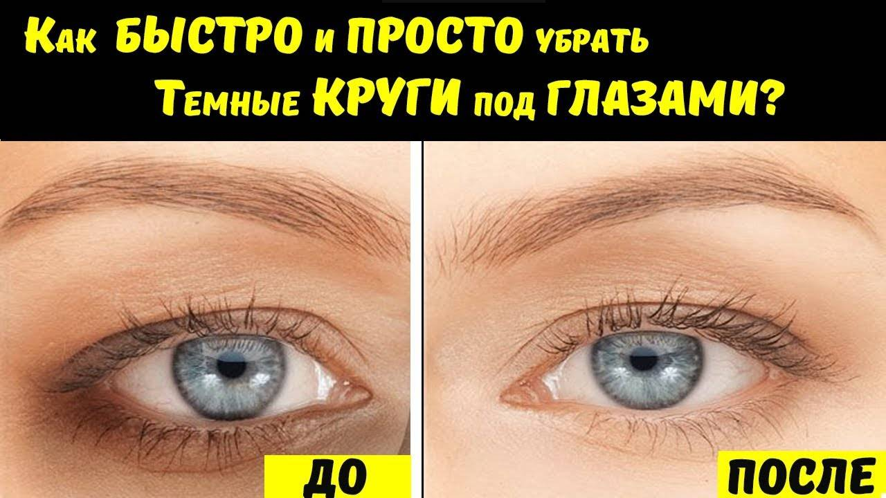 Синие круги под глазами