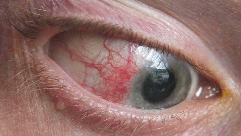 Склерит глаз: что это такое, причины и виды, симптомы и лечение
