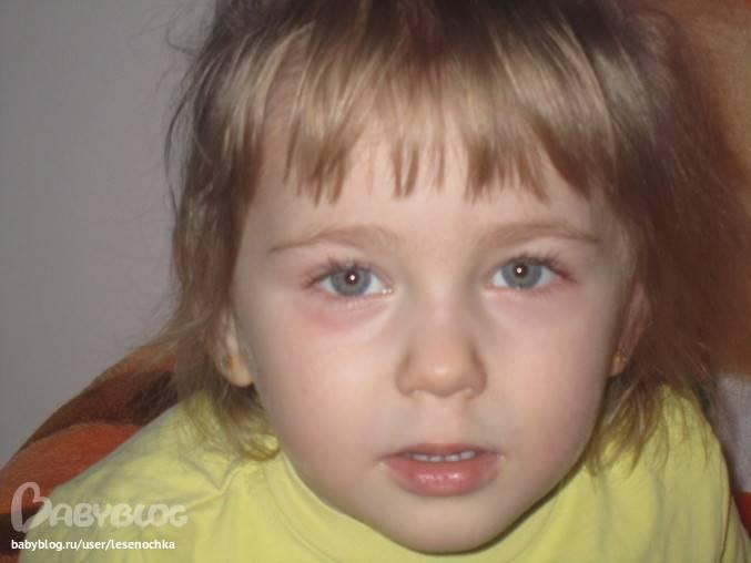 Мешки под глазами у ребенка: причины, лечение, профилактика