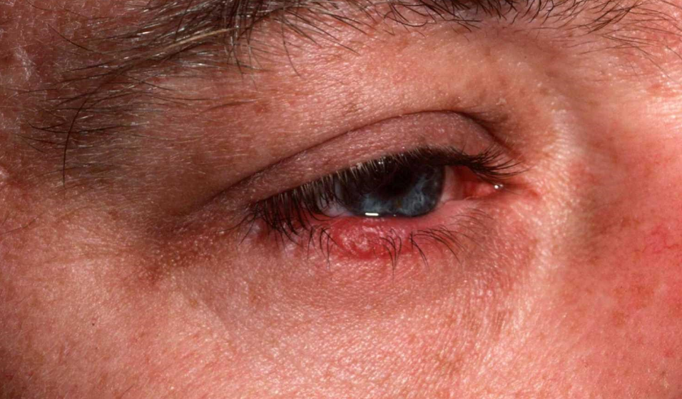 Демодекоз век: схема лечения, симптомы и причины