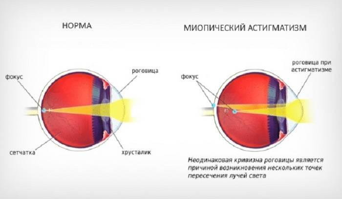 """Миопический астигматизм: методы лечения - """"здоровое око"""""""