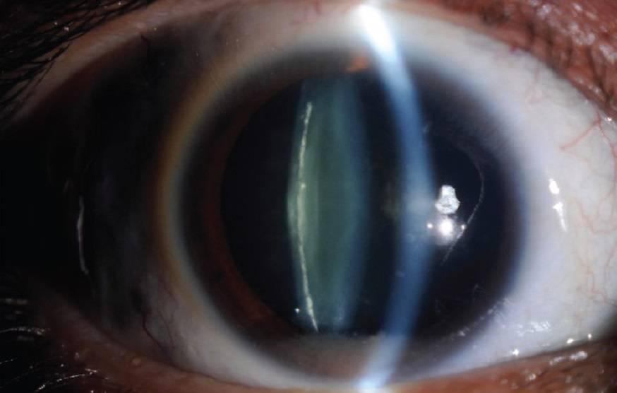 Ядерная катаракта глаз у пожилых людей: лечение и профилактика