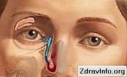 Лазерная дакриоцисториностомия: ход операции, виды и типы - нет заразе