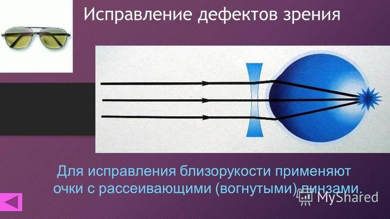 Какие линзы применяются при близорукости: виды линз, правила выбора oculistic.ru какие линзы применяются при близорукости: виды линз, правила выбора