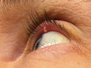 Ячмень на правом или левом глазу – народные приметы, почему выскакивает, появляется