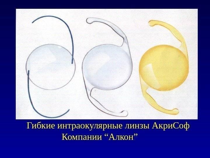 Искусственные хрусталики при катаракте (иол, интраокулярные линзы) - обзор лучших моделей, цены и отзывы
