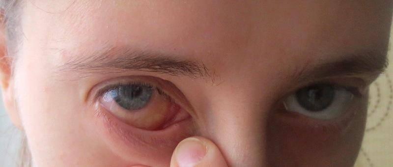 Почему болит внутренний уголок глаза