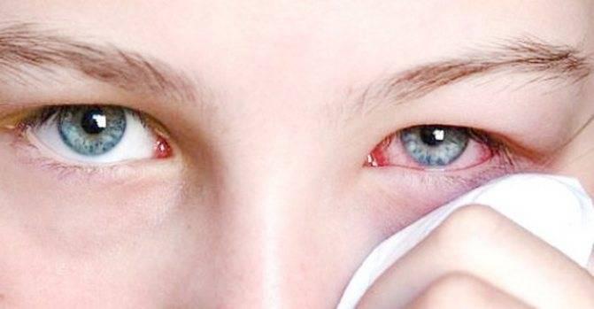 Что сделать, чтобы глаза стали красными
