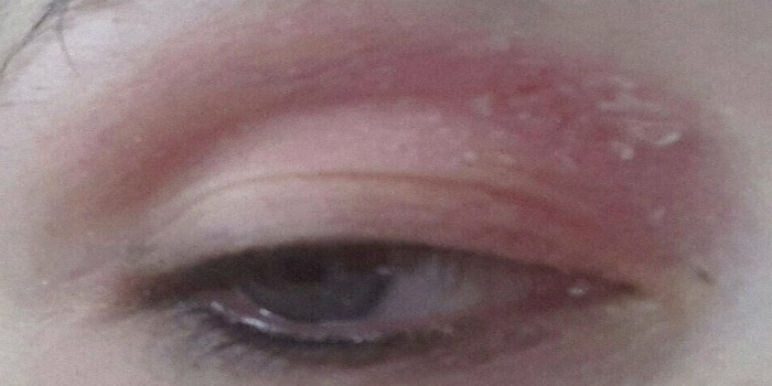 Как убрать красноту под глазами. как убрать покраснения под глазами?