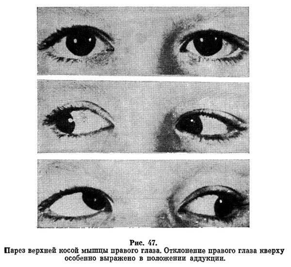 Межъядерная офтальмоплегия