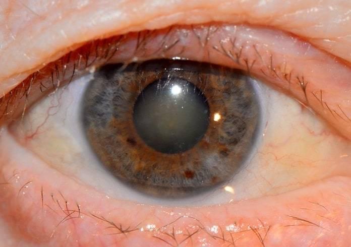 Помутнение хрусталика глаза - лечение, причины и симптомы