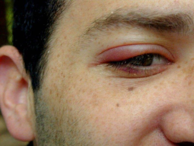 Через сколько проходит ячмень на глазу - продолжительность лечения oculistic.ru через сколько проходит ячмень на глазу - продолжительность лечения