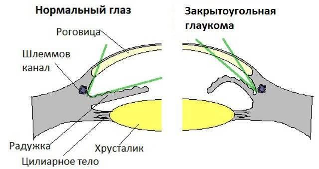 Открытоугольная глаукома первичная: различие с закрытоугольной, причины, симптомы, лечение, профилактика, рекомендации больному