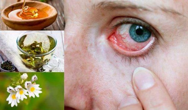 Как убрать красноту глаз в домашних условиях: рецепты для быстрого избавления от симптома