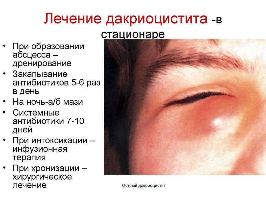 Дакриоцистит у взрослых: лечение и профилактика
