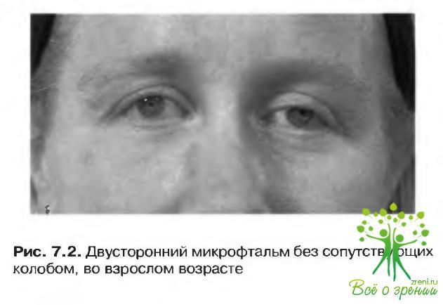Деструкция стекловидного тела глаза
