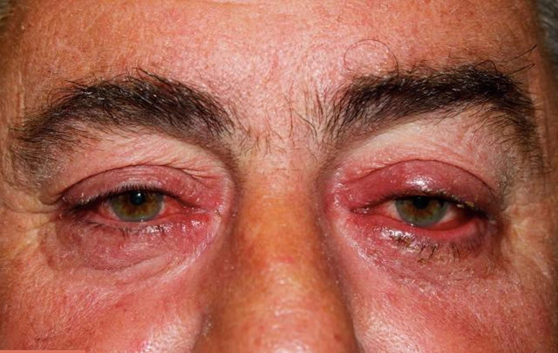 Грибок глаз — чем опасно заболевание