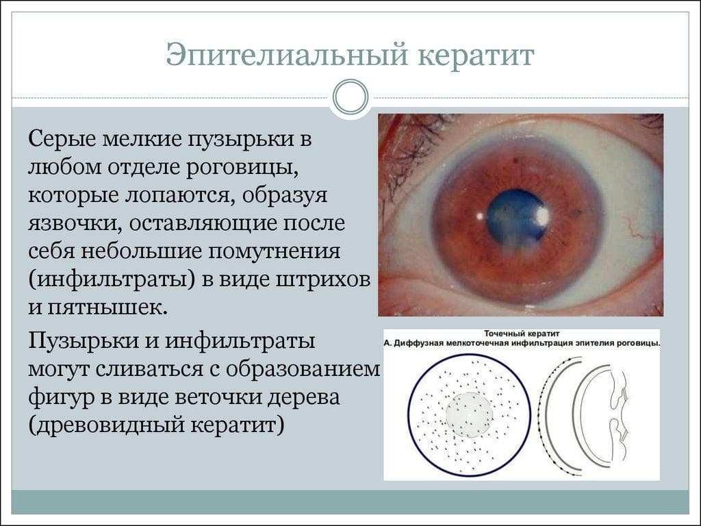 Афакия глаза: причины, симптомы, диагностика и лечение