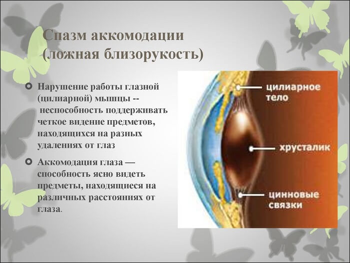 Спазм аккомодации глаз – симптомы, лечение, капли для снятия спазма аккомодации