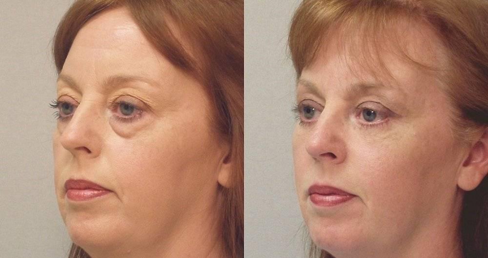 Как убрать грыжи под глазами без операции - новая косметология