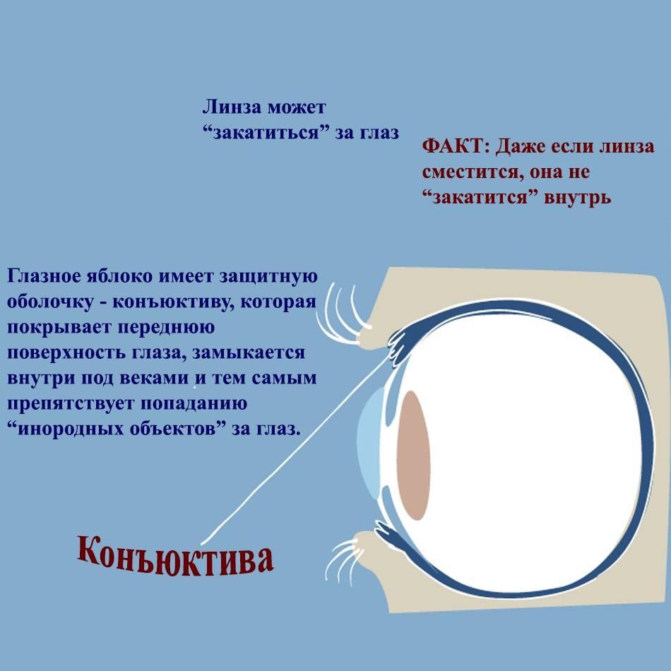 После замены хрусталика глаз видит мутно: что делать, если в результате операции человек не видит