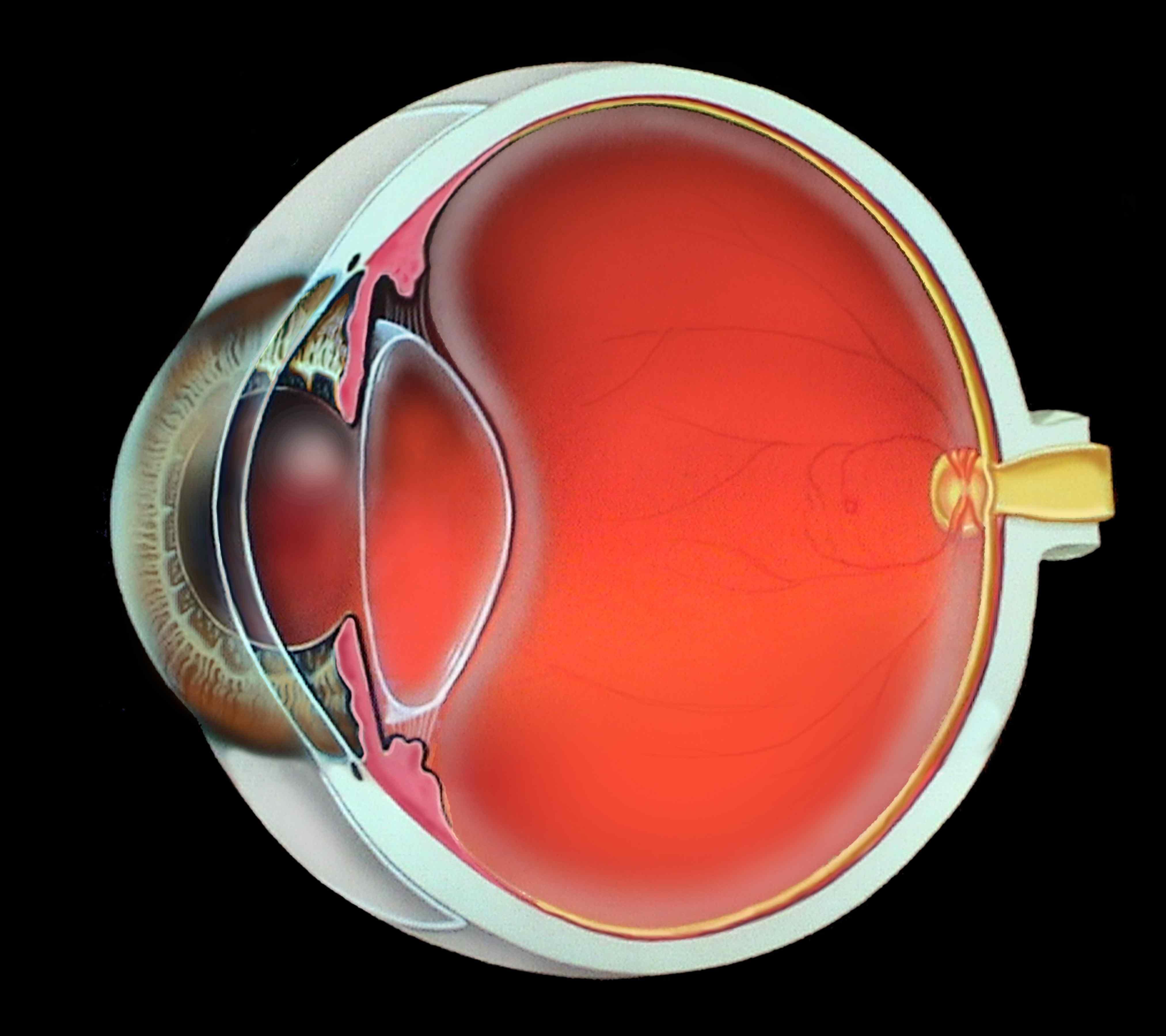"""Факосклероз хрусталика глаза: причины, симптомы и эффективные методы лечения заболевания - moscoweyes.ru - сайт офтальмологического центра """"мгк-диагностик"""""""