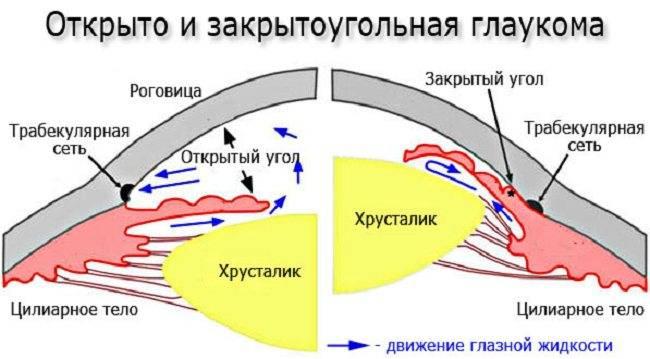 Закрытоугольная глаукома: причины, симптомы, лечение, профилактика, диагностика, виды (остроугольная, узкоугольная, краеугольная), первая помощь при остром приступе
