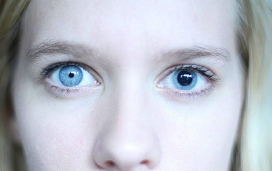 Анизокория: причины и лечение разных по размеру зрачков у взрослых и детей