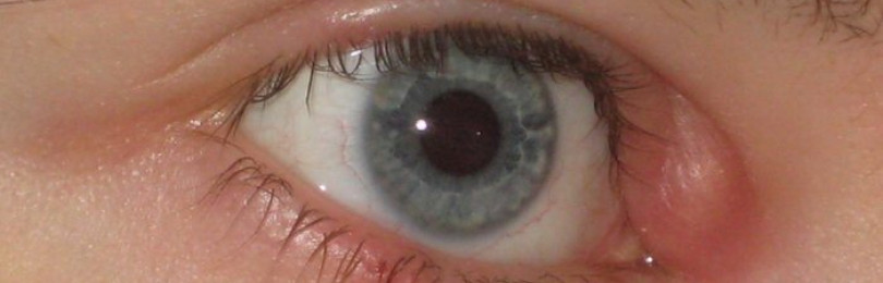 Сколько длится ячмень на глазу