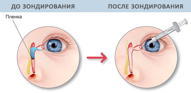 Что делать, если у грудничка гноятся глаза