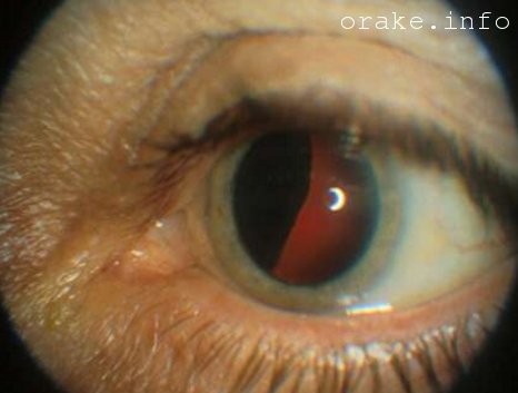 Глазные болезни и их симптомы онкология