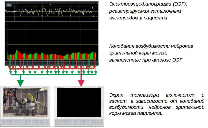Амблиокор комплекс в офтальмологии при амблиопии: лечение аппаратом, 01-3, отзывы