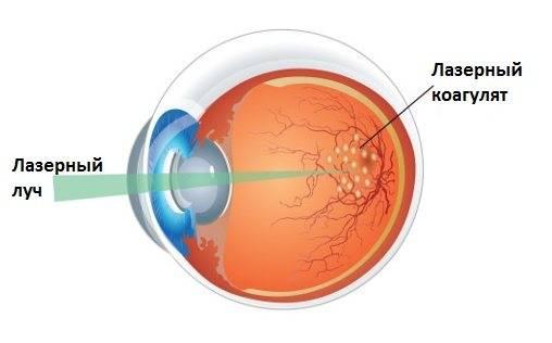 Беременность и сетчатка глаза