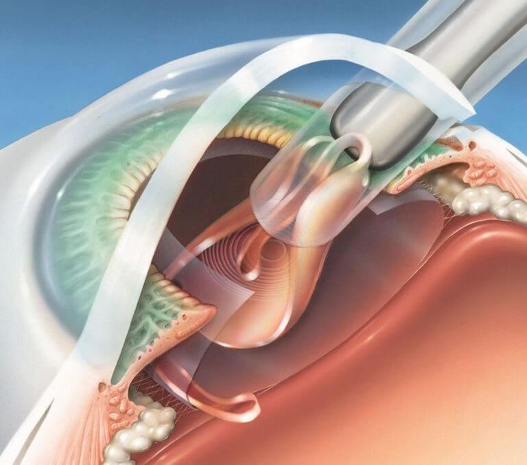 Лечение катаракты глаза народными средствами без операции в домашних условиях - современные способы как вылечить катаракту медом и укропом