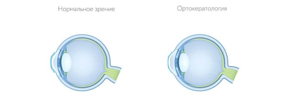 Ночные линзы для восстановления зрения отзывы врачей и людей