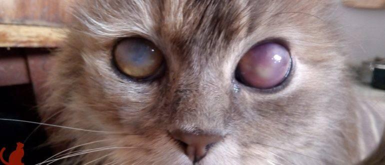 Бельмо на глазу у человека: что это такое, причины и лечение
