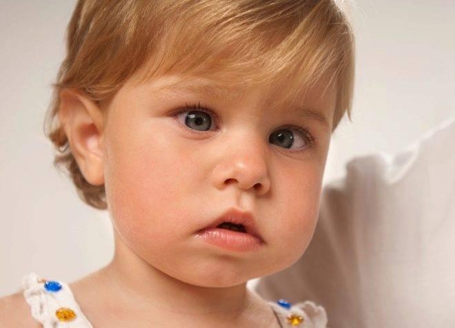 Косоглазие у детей – причины и лечение: как лечить до года и как исправить расходящееся косоглазие